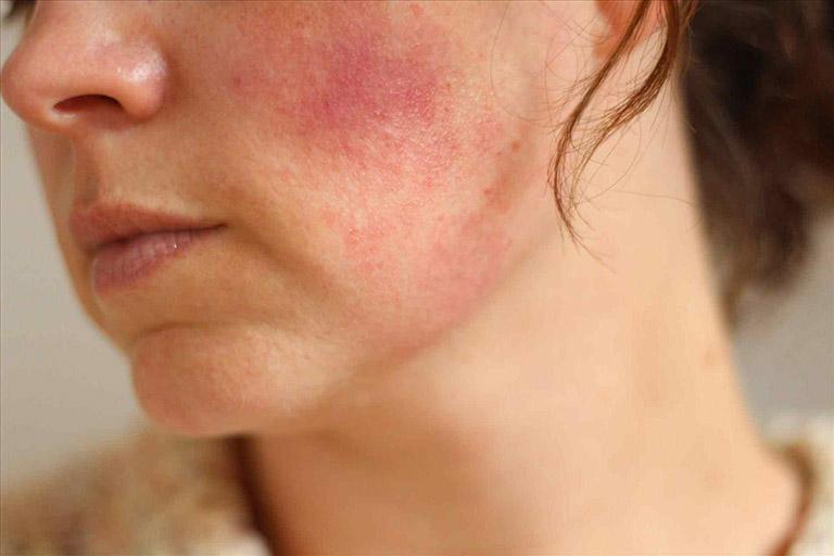Bôi nghệ tươi qua đêm có thể gây bít tắc lỗ chân lông, gây kích ứng với những làn da nhạy cảm